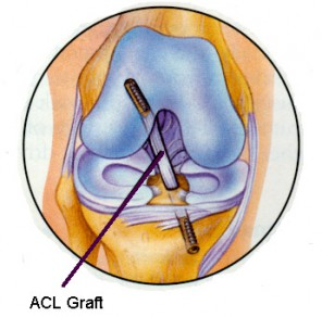 ACL reconstruction is one of the most common surgical procedures performed on the injured knee. The anterior cruciate ligament is an intraarticular (within the joint) ligament, and as such heals poorly.  For this reason, it is almost always reconstructed with a substitute ligament, rather than being repaired.